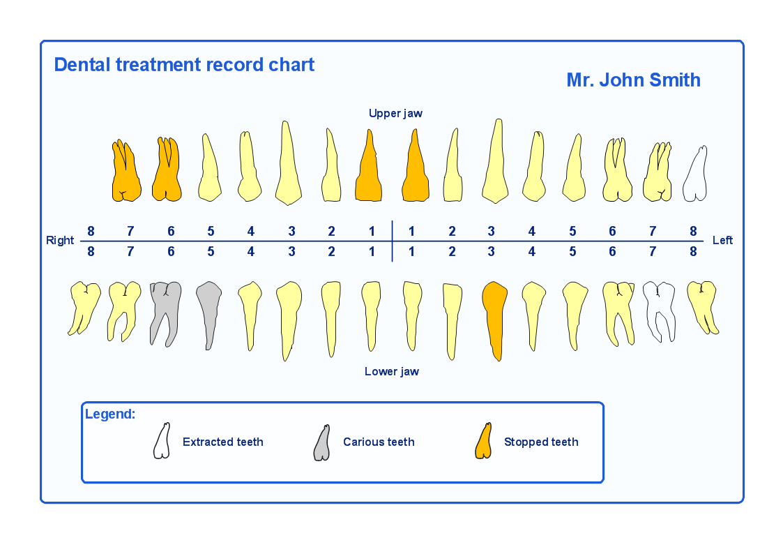 ConceptDraw Samples – Teeth Chart Template